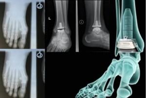 protez-ayak