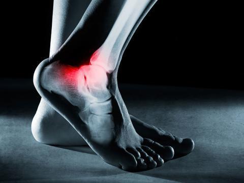 ayak bileği protezi ameliyatı