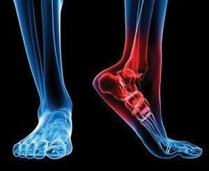 ayak ve ayak bileği kireçlenmeleri