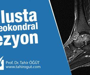 talusta osteokondral lezyon