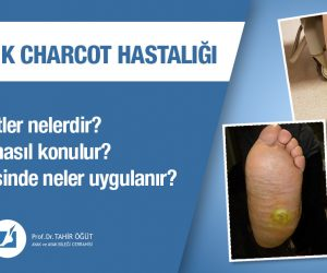 diyabetik charcot hastalığı