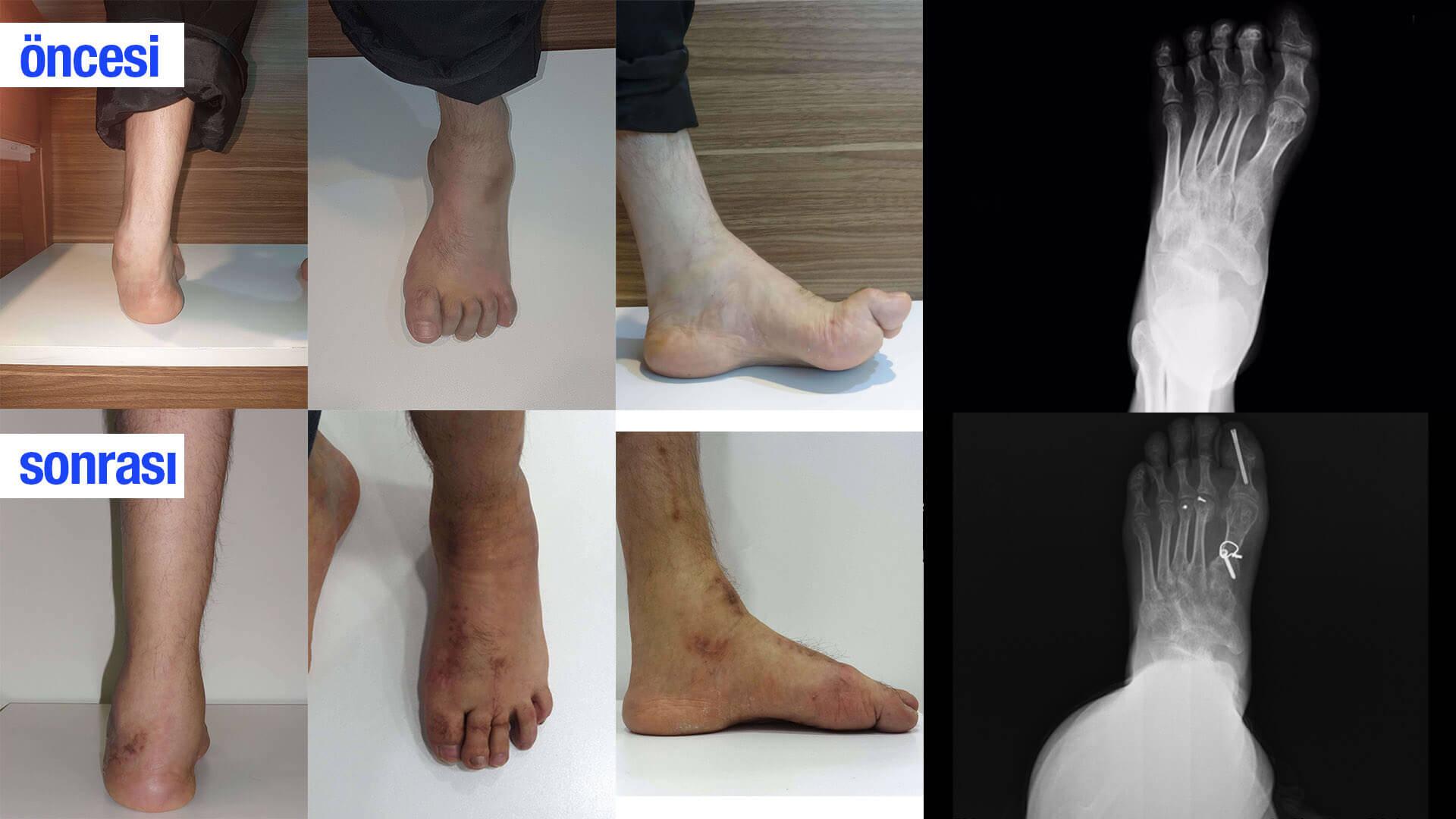 ayak deformasyonu ameliyat