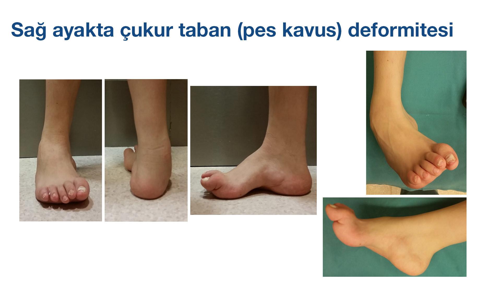 Çukur Taban (pes kavus) Deformitesi