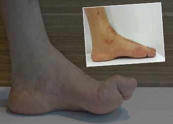 Nörolojik ( sinir hastalığına bağlı ) ayak deformitesi.