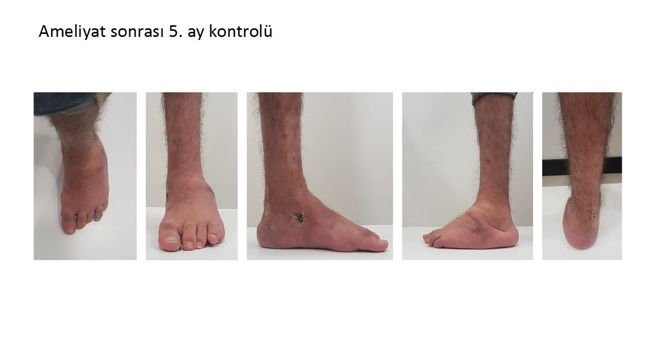 doğumsal çarpık ayak ameliyat sonrası