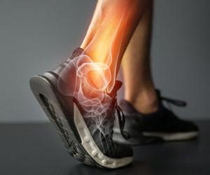 Ayak Bileği Yan Bağ Tedavisi