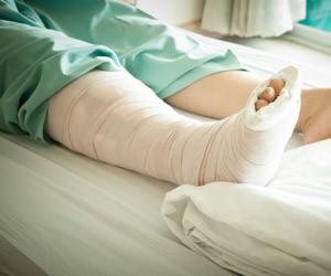 bacak kırıkları