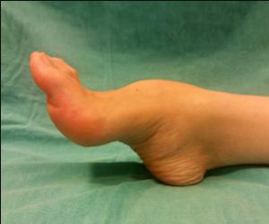 CMT (Charcot Marie Tooth) Hastalığı Neden Olur? Tedavisi Nasıldır?
