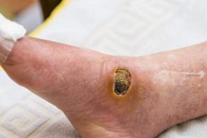 diyabetik ayak nedir nasıl tedavi edilir