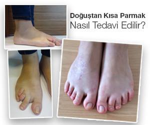 doğuştan gelen kısa parmak hastalığı tedavisi